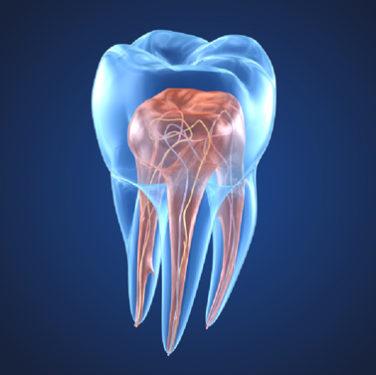 Endodontics in Arlington VA Dentazure
