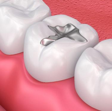 Dental Fillings Arlington VA